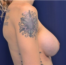 Breast Augmentation After Photo by Michael Frederick, MD; Palm Beach Gardens, FL - Case 35898
