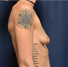 Breast Augmentation Before Photo by Michael Frederick, MD; Palm Beach Gardens, FL - Case 35898