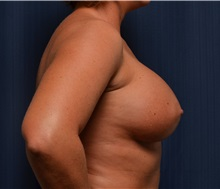 Breast Augmentation After Photo by Michael Frederick, MD; Palm Beach Gardens, FL - Case 35899