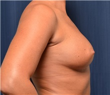 Breast Augmentation Before Photo by Michael Frederick, MD; Palm Beach Gardens, FL - Case 35899
