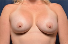 Breast Augmentation After Photo by Michael Frederick, MD; West palm beach, FL - Case 35900