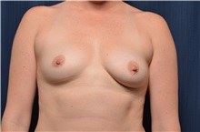Breast Augmentation Before Photo by Michael Frederick, MD; West palm beach, FL - Case 35900