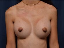 Breast Augmentation After Photo by Michael Frederick, MD; Palm Beach Gardens, FL - Case 35901