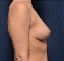 Breast Lift After Photo by Michael Frederick, MD; Fort Lauderdale, FL - Case 35909