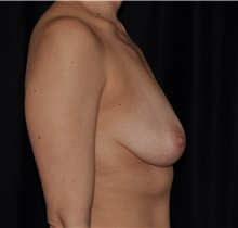 Breast Lift Before Photo by Michael Frederick, MD; Fort Lauderdale, FL - Case 35909