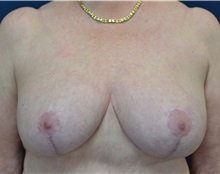 Breast Lift After Photo by Michael Frederick, MD; West palm beach, FL - Case 35911