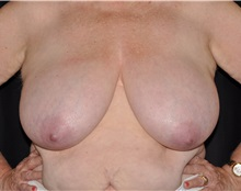 Breast Lift Before Photo by Michael Frederick, MD; West palm beach, FL - Case 35911
