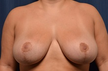 Breast Lift After Photo by Michael Frederick, MD; Fort Lauderdale, FL - Case 35913