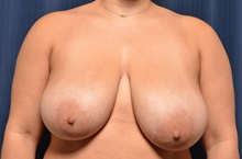 Breast Lift Before Photo by Michael Frederick, MD; Fort Lauderdale, FL - Case 35913