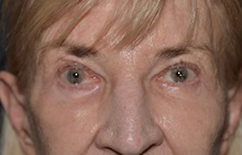 Eyelid Surgery After Photo by Michael Frederick, MD; Fort Lauderdale, FL - Case 35931