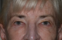 Eyelid Surgery Before Photo by Michael Frederick, MD; Fort Lauderdale, FL - Case 35931