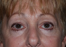 Eyelid Surgery After Photo by Michael Frederick, MD; Fort Lauderdale, FL - Case 35932