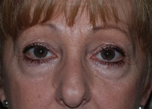 Eyelid Surgery Before Photo by Michael Frederick, MD; Fort Lauderdale, FL - Case 35932
