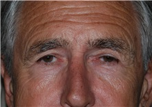 Brow Lift Before Photo by Michael Frederick, MD; Palm Beach Gardens, FL - Case 35933