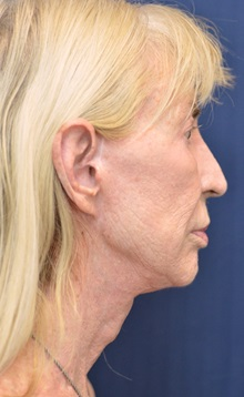 Facelift After Photo by Michael Frederick, MD; West palm beach, FL - Case 35936