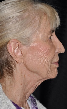Facelift Before Photo by Michael Frederick, MD; West palm beach, FL - Case 35936