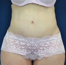 Body Lift After Photo by Michael Frederick, MD; West palm beach, FL - Case 35940