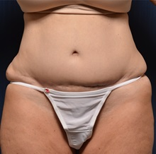 Body Lift Before Photo by Michael Frederick, MD; West palm beach, FL - Case 35940