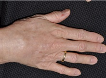 Hand Surgery After Photo by Michael Frederick, MD; Fort Lauderdale, FL - Case 35941