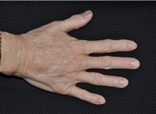Hand Surgery Before Photo by Michael Frederick, MD; Fort Lauderdale, FL - Case 35941
