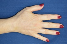 Hand Surgery After Photo by Michael Frederick, MD; West palm beach, FL - Case 35943