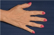 Hand Surgery Before Photo by Michael Frederick, MD; West palm beach, FL - Case 35943