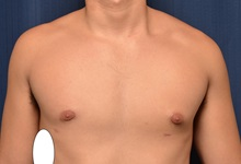 Male Breast Reduction After Photo by Michael Frederick, MD; Fort Lauderdale, FL - Case 35960