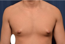 Male Breast Reduction Before Photo by Michael Frederick, MD; Fort Lauderdale, FL - Case 35960
