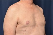 Male Breast Reduction After Photo by Michael Frederick, MD; Fort Lauderdale, FL - Case 35962
