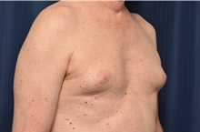 Male Breast Reduction Before Photo by Michael Frederick, MD; Fort Lauderdale, FL - Case 35962