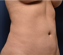 Liposuction After Photo by Michael Frederick, MD; West palm beach, FL - Case 36015