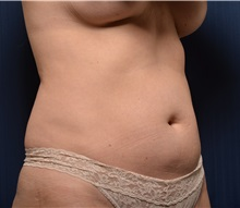 Liposuction Before Photo by Michael Frederick, MD; West palm beach, FL - Case 36015