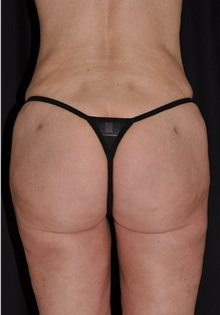 Liposuction After Photo by Michael Frederick, MD; Palm Beach Gardens, FL - Case 36017