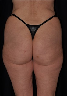 Liposuction Before Photo by Michael Frederick, MD; Palm Beach Gardens, FL - Case 36017