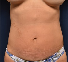 Liposuction After Photo by Michael Frederick, MD; Palm Beach Gardens, FL - Case 36050