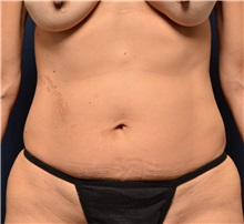Liposuction Before Photo by Michael Frederick, MD; Palm Beach Gardens, FL - Case 36050