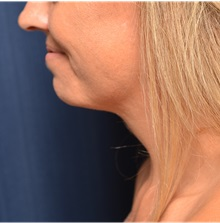 Liposuction After Photo by Michael Frederick, MD; Fort Lauderdale, FL - Case 36056