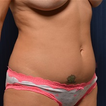 Liposuction Before Photo by Michael Frederick, MD; Palm Beach Gardens, FL - Case 36057