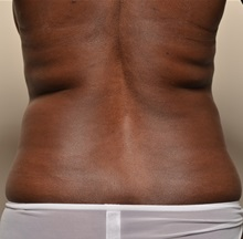 Liposuction Before Photo by Michael Frederick, MD; Palm Beach Gardens, FL - Case 36060