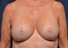 Breast Lift After Photo by Michael Frederick, MD; Palm Beach Gardens, FL - Case 36519