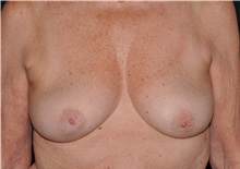 Breast Lift Before Photo by Michael Frederick, MD; Palm Beach Gardens, FL - Case 36519