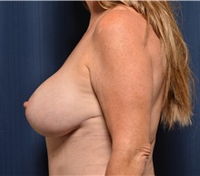 Breast Lift After Photo by Michael Frederick, MD; West palm beach, FL - Case 36521