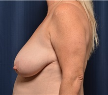 Breast Lift Before Photo by Michael Frederick, MD; West palm beach, FL - Case 36521