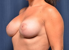 Breast Lift After Photo by Michael Frederick, MD; Fort Lauderdale, FL - Case 36522