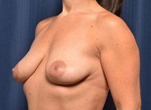 Breast Lift Before Photo by Michael Frederick, MD; Fort Lauderdale, FL - Case 36522