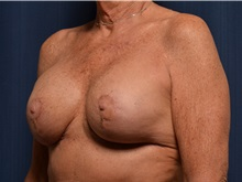 Breast Implant Revision After Photo by Michael Frederick, MD; West palm beach, FL - Case 36523