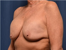 Breast Implant Revision Before Photo by Michael Frederick, MD; West palm beach, FL - Case 36523