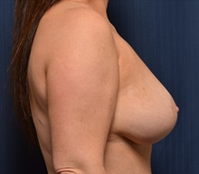 Breast Lift After Photo by Michael Frederick, MD; West palm beach, FL - Case 36527