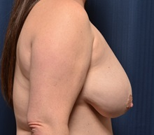 Breast Lift Before Photo by Michael Frederick, MD; West palm beach, FL - Case 36527