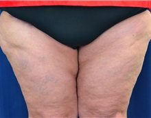 Thigh Lift After Photo by Michael Frederick, MD; West palm beach, FL - Case 36559